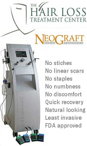 neograft hair replacement